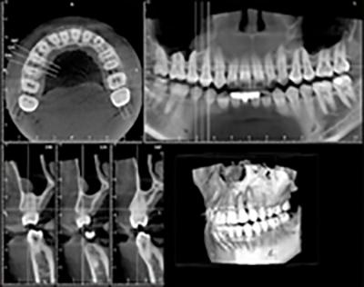 歯科用CTとインプラント