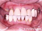 practice_implant_03