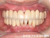 practice_implant_06