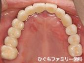 practice_implant_07