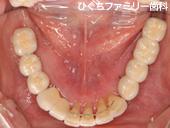 practice_implant_08