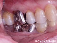 practice_implant_12