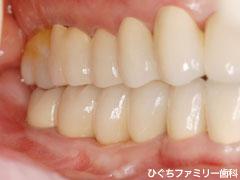 practice_implant_13