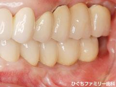 practice_implant_15
