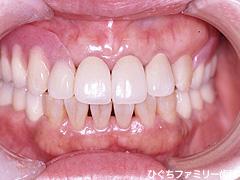 practice_implant_17