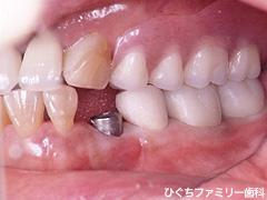 practice_implant_18