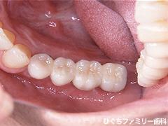 practice_implant_20