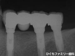 practice_implant_21