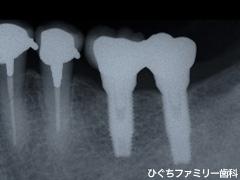 practice_implant_23