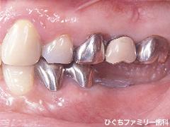 practice_implant_24