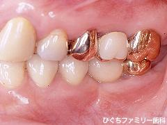 practice_implant_25