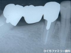 practice_implant_26