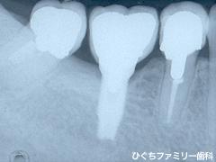 practice_implant_27