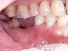 practice_implant_28