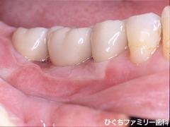 practice_implant_29