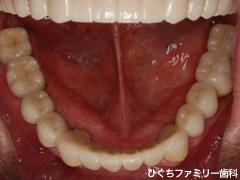 practice_implant_36
