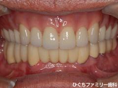 practice_implant_37