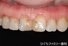 practice_implant_40